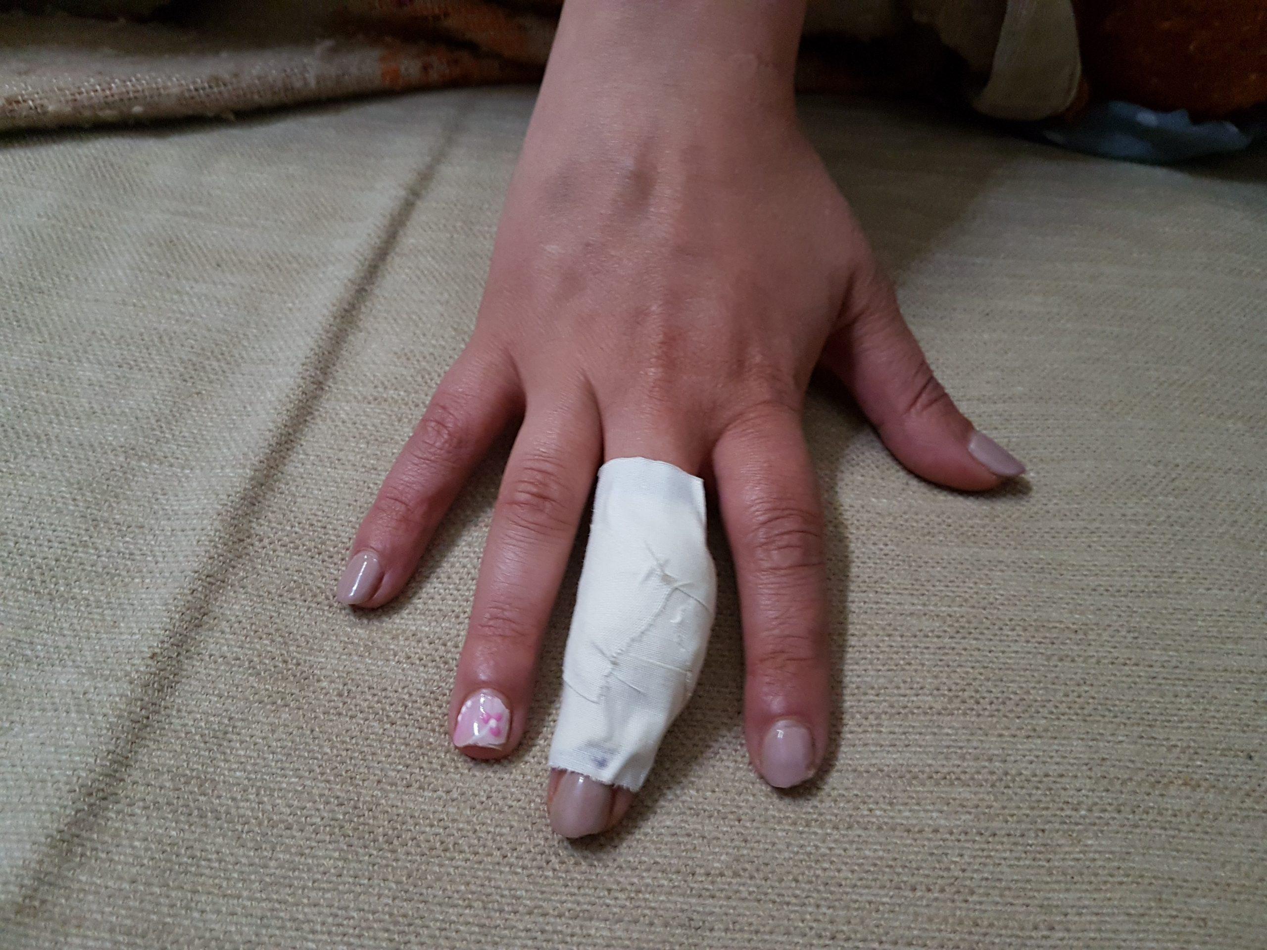 Il dito tagliato
